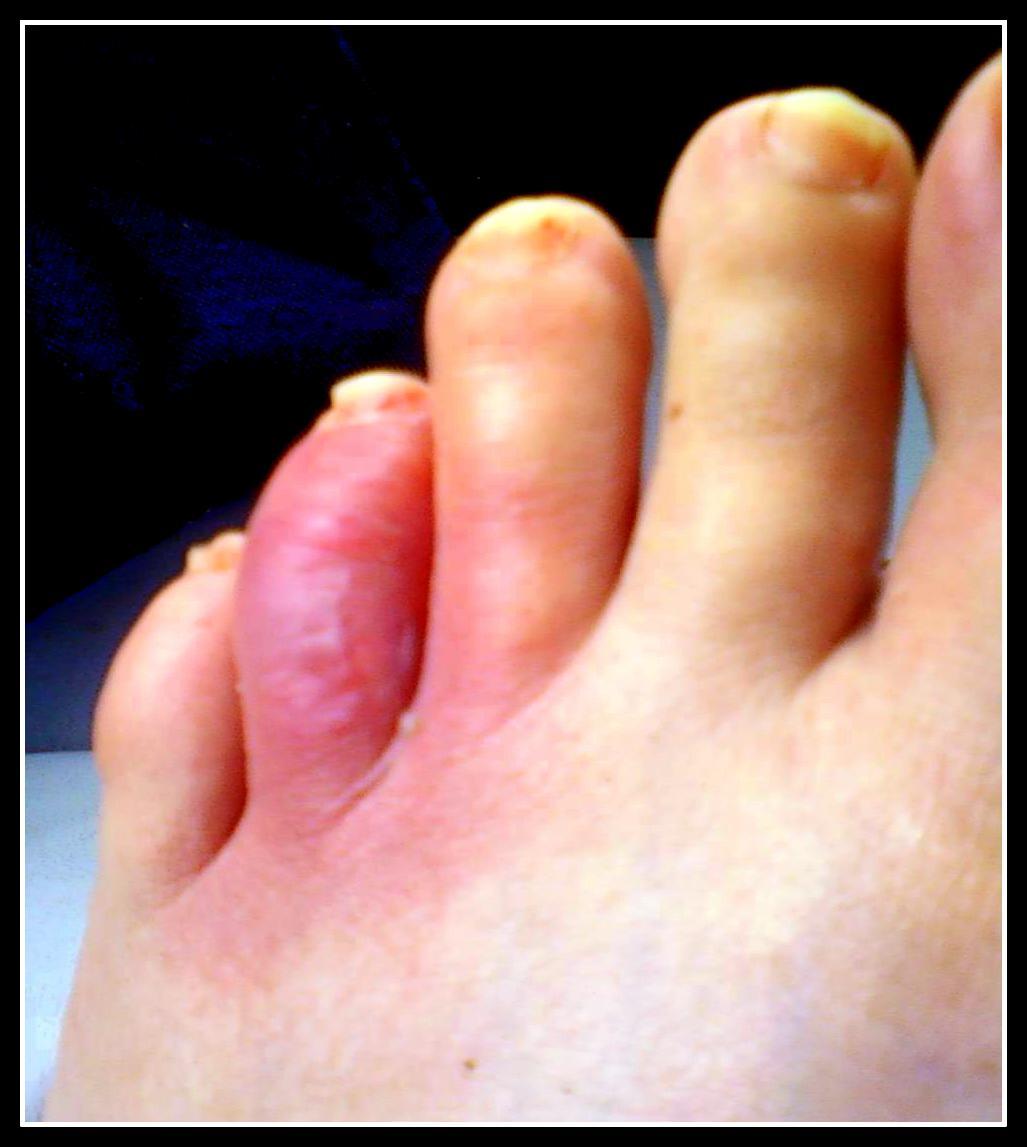 Brown Recluse In Shoe