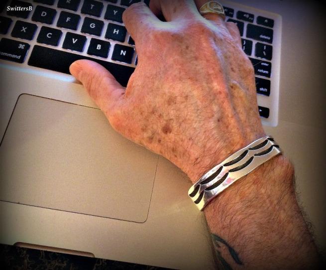 Photography-Injured Hand-Fused Wrist-Arthritis-Injuries-SwittersB