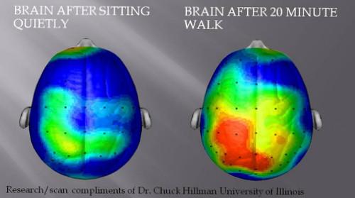 brain scan, MRI, brain waves, exercise, rest, SwittersB